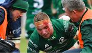 13 April 2019; Shane Delahunt of Connacht after picking up a blood injury during the Guinness PRO14 Round 20 match between Connacht and Cardiff Blues at The Sportsground in Galway. Photo by Piaras Ó Mídheach/Sportsfile