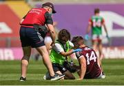 25 July 2021; Shane Walsh of Galway recieves treatment during the Connacht GAA Senior Football Championship Final match between Galway and Mayo at Croke Park in Dublin. Photo by Harry Murphy/Sportsfile